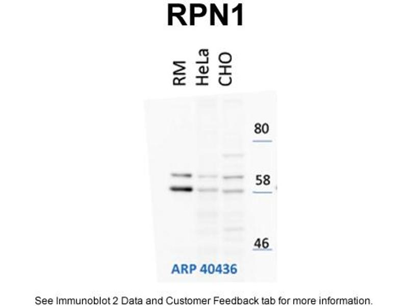 Western Blotting (WB) image for anti-Ribophorin 1 (RPN1) (N-Term) antibody (ABIN310034)