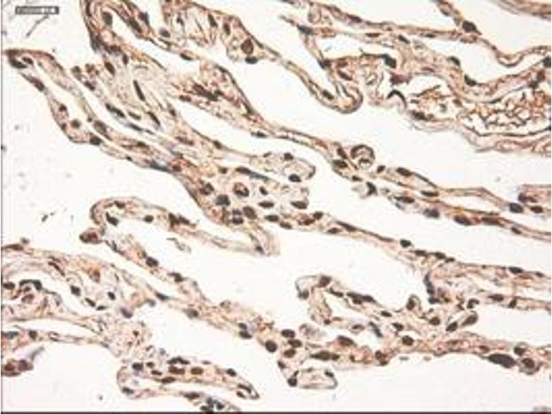 Image no. 6 for anti-Myc Proto-Oncogene protein (MYC) antibody (ABIN1497011)