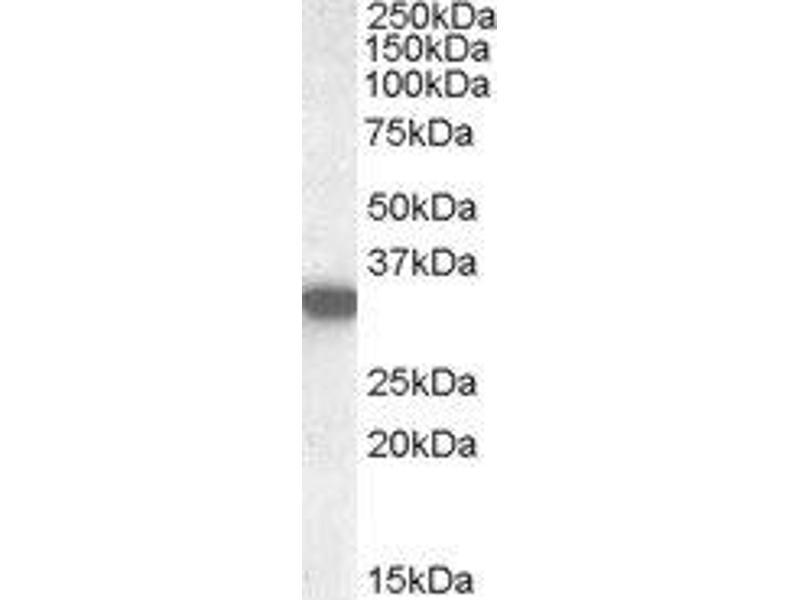 Western Blotting (WB) image for anti-Hydroxyacyl-CoA Dehydrogenase (HADH) (Internal Region) antibody (ABIN2562991)