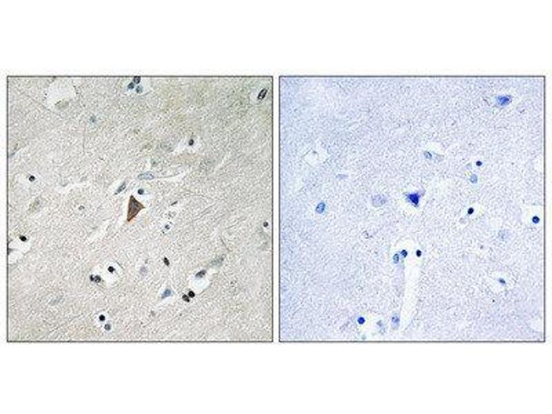 Immunohistochemistry (IHC) image for anti-PDPK1 antibody (3-phosphoinositide Dependent Protein Kinase-1) (N-Term) (ABIN1847564)