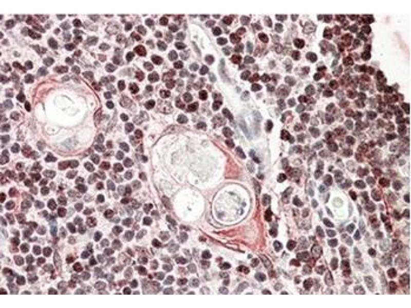 Immunohistochemistry (Paraffin-embedded Sections) (IHC (p)) image for anti-SATB Homeobox 1 (SATB1) (Internal Region) antibody (ABIN615915)