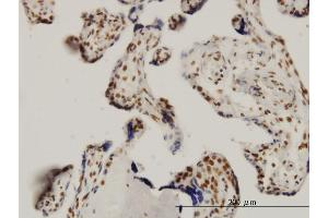 Immunostaining (ISt) image for anti-SGK1 antibody (serum/glucocorticoid Regulated Kinase 1) (AA 1-90) (ABIN562851)