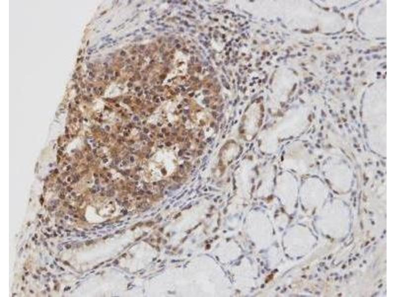 Immunohistochemistry (Paraffin-embedded Sections) (IHC (p)) image for anti-Cylindromatosis (Turban Tumor Syndrome) (CYLD) (C-Term) antibody (ABIN4301701)