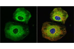 Immunofluorescence (IF) image for anti-Stathmin 1 (STMN1) (C-Term) antibody (ABIN2855912)