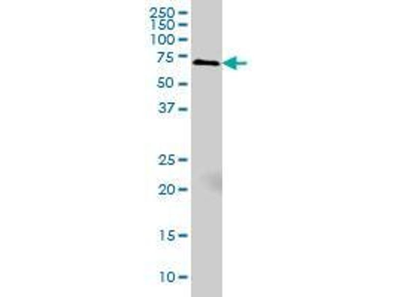Immunohistochemistry (IHC) image for anti-Myristoylated Alanine-Rich Protein Kinase C Substrate (MARCKS) (AA 2-66) antibody (ABIN393581)