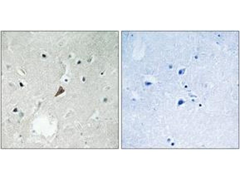 Immunohistochemistry (IHC) image for anti-PTK2B Antikörper (PTK2B Protein tyrosine Kinase 2 beta) (pTyr579) (ABIN1532112)