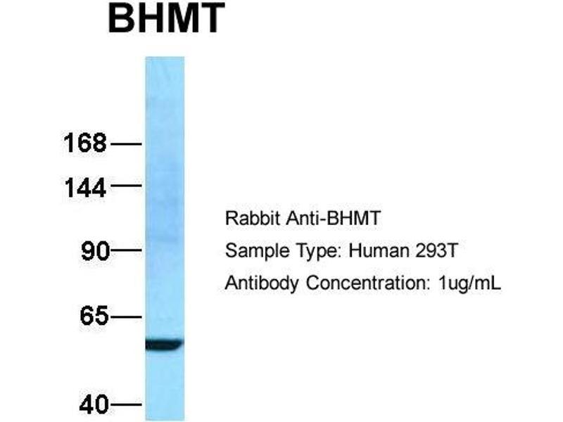Western Blotting (WB) image for anti-Betaine--Homocysteine S-Methyltransferase (BHMT) (N-Term) antibody (ABIN2773785)