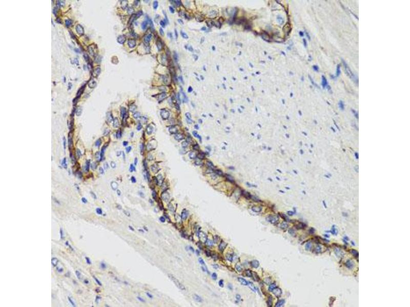 Image no. 3 for anti-ATPase, Na+/K+ Transporting, alpha 1 Polypeptide (ATP1A1) antibody (ABIN6566631)