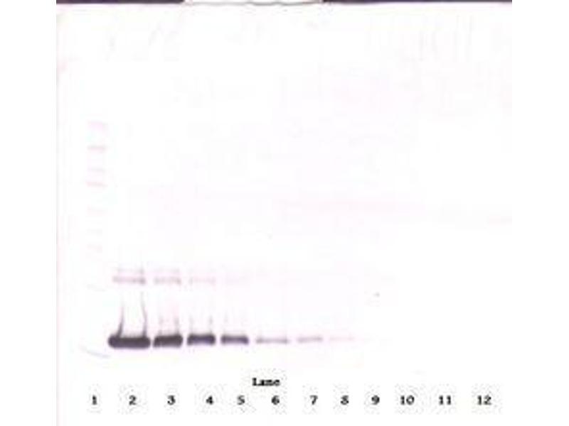 image for anti-IL2 antibody (Interleukin 2) (ABIN465129)