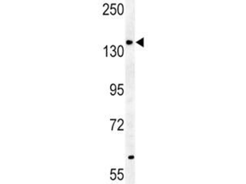 Western Blotting (WB) image for anti-ATP-Binding Cassette, Sub-Family B (MDR/TAP), Member 4 (ABCB4) (AA 624-654) antibody (ABIN3030051)