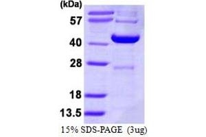 Image no. 1 for Decapping Enzyme, Scavenger (DCPS) (AA 1-337) protein (His tag) (ABIN667946)