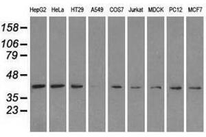 image for anti-Mitogen-Activated Protein Kinase 1 (MAPK1) antibody (ABIN1499289)