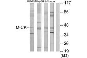 Image no. 2 for anti-Creatine Kinase, Muscle (CKM) (AA 10-59) antibody (ABIN1533590)