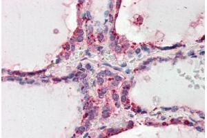 Immunohistochemistry (Paraffin-embedded Sections) (IHC (p)) image for anti-Wingless-Type MMTV Integration Site Family, Member 3 (WNT3) (AA 315-329) antibody (ABIN461935)