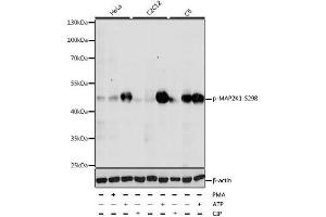 Image no. 1 for anti-Mitogen-Activated Protein Kinase Kinase 1 (MAP2K1) (pSer297) antibody (ABIN3019497)
