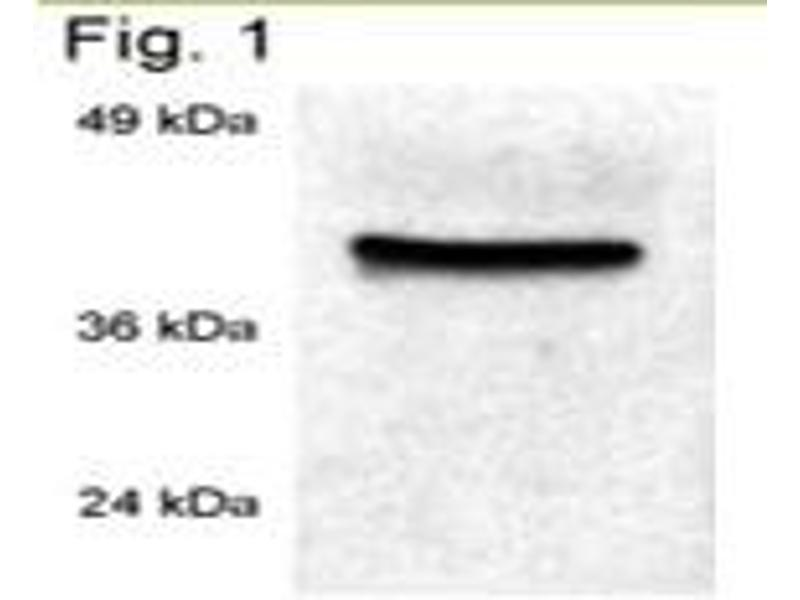 Western Blotting (WB) image for anti-Peptidylprolyl Isomerase D (PPID) antibody (ABIN267196)
