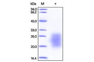 SDS-PAGE (SDS) image for KIT Ligand (KITLG) (Active) protein (Strep Tag,Biotin,His tag) (ABIN2444217)