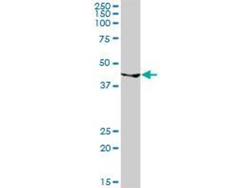 Western Blotting (WB) image for anti-GATA Binding Protein 1 (Globin Transcription Factor 1) (GATA1) (AA 1-413), (full length) antibody (ABIN515941)