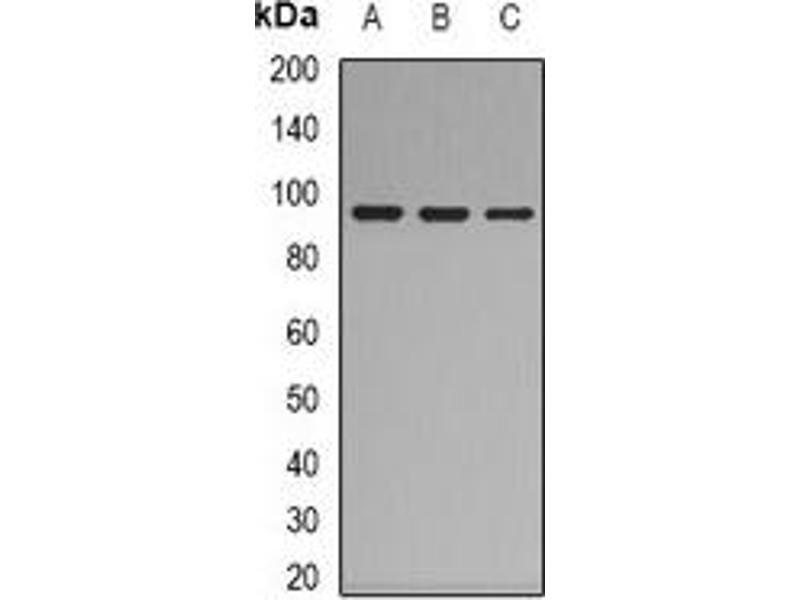 Western Blotting (WB) image for anti-Complement Component C7 (C7) (N-Term) antibody (ABIN2957534)
