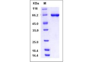 Image no. 1 for serine/threonine Kinase 40 (STK40) (AA 1-435) protein (GST tag,His tag) (ABIN2004409)