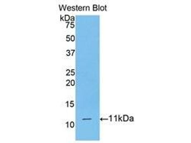 Western Blotting (WB) image for anti-CD3d Molecule, delta (CD3-TCR Complex) (CD3D) (AA 22-103) antibody (ABIN1175142)