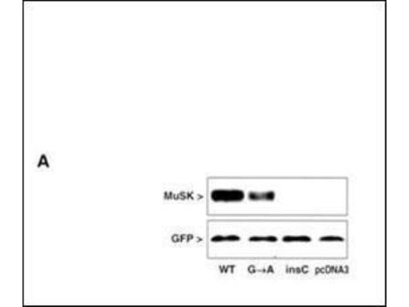 Western Blotting (WB) image for anti-Muscle, Skeletal, Receptor Tyrosine Kinase (MUSK) (N-Term) antibody (ABIN4336820)