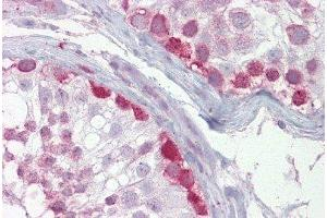 Immunohistochemistry (Paraffin-embedded Sections) (IHC (p)) image for anti-Cryptochrome 1 (Photolyase-Like) (CRY1) (N-Term) antibody (ABIN4892971)
