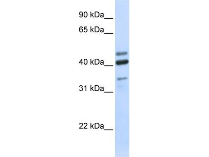 Western Blotting (WB) image for anti-Hyaluronidase-1 (HYAL1) (N-Term) antibody (ABIN2784343)