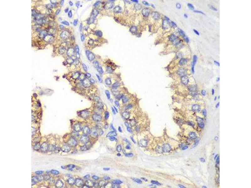 Immunohistochemistry (IHC) image for anti-Kallikrein 10 (KLK10) antibody (ABIN2563584)
