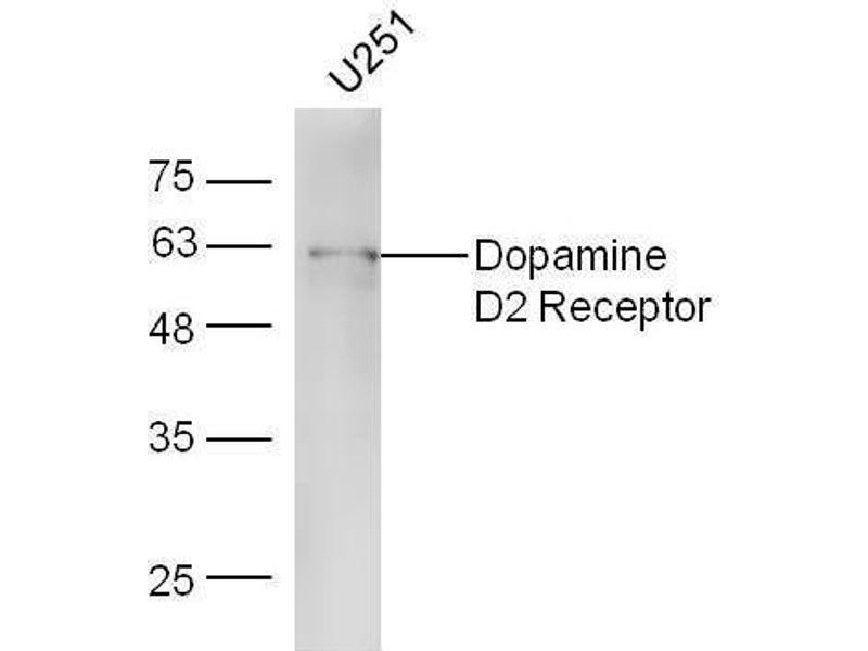 Western Blotting (WB) image for anti-Dopamine Receptor D2 (DRD2) (AA 214-260) antibody (ABIN730858)