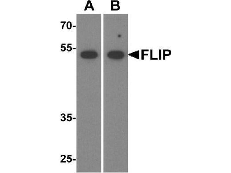 Western Blotting (WB) image for anti-CFLAR antibody (CASP8 and FADD-Like Apoptosis Regulator) (ABIN4312112)