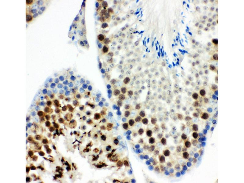 Immunohistochemistry (IHC) image for anti-Kinesin Family Member 2C (KIF2C) (AA 531-725) antibody (ABIN3043278)
