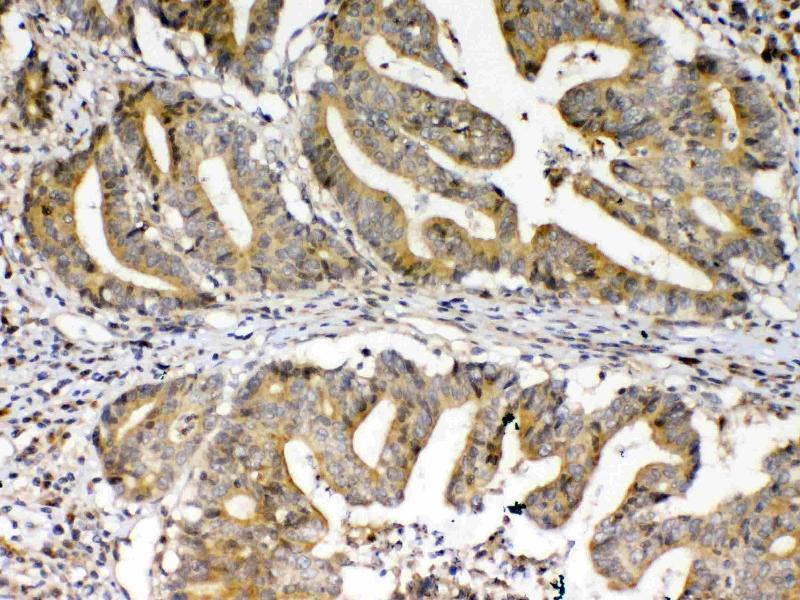 Immunohistochemistry (IHC) image for anti-Frizzled Family Receptor 3 (FZD3) antibody (ABIN5693226)