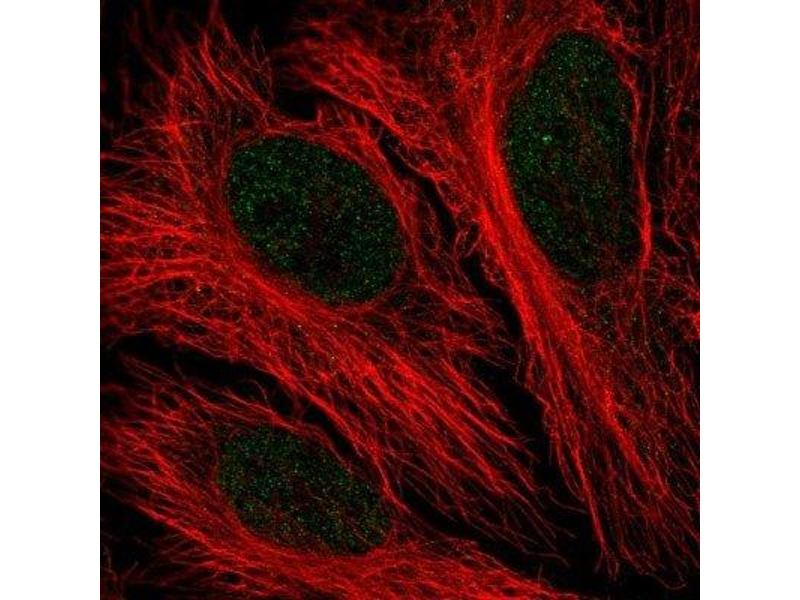Immunofluorescence (IF) image for anti-PFKFB2 antibody (6-phosphofructo-2-Kinase/fructose-2,6-Biphosphatase 2) (ABIN4344995)
