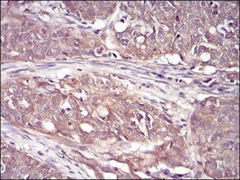 Immunohistochemistry (Paraffin-embedded Sections) (IHC (p)) image for anti-RPS6KA2 antibody (Ribosomal Protein S6 Kinase, 90kDa, Polypeptide 2) (ABIN4351288)