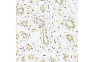 Immunohistochemistry (Paraffin-embedded Sections) (IHC (p)) image for anti-Signal Transducer and Activator of Transcription 1, 91kDa (STAT1) antibody (ABIN6148563)