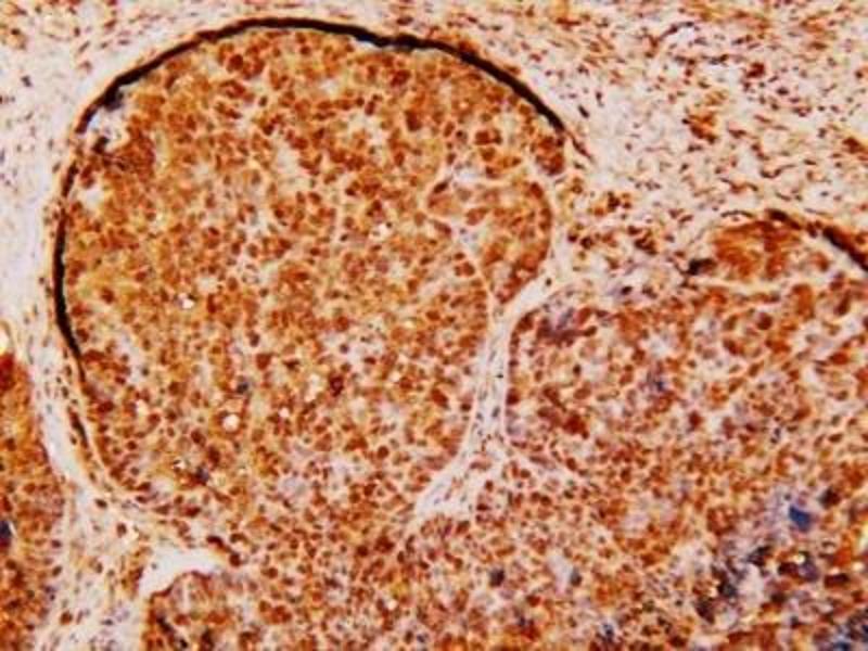 Immunohistochemistry (Paraffin-embedded Sections) (IHC (p)) image for anti-Survivin antibody (BIRC5) (ABIN153009)