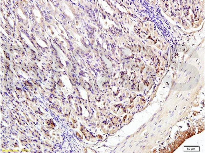 Immunohistochemistry (IHC) image for anti-Interferon Regulatory Factor 3 (IRF3) (AA 375-425), (pSer396) antibody (ABIN742688)