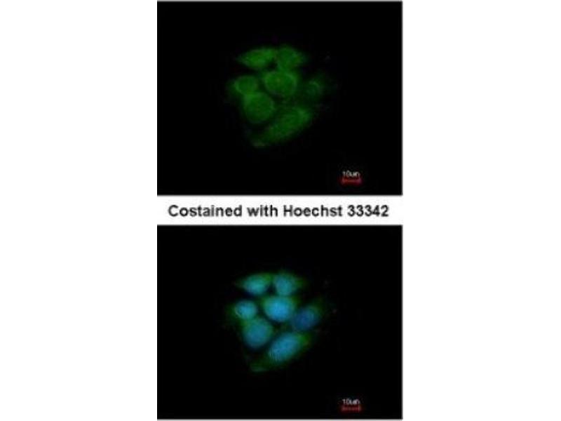 Immunofluorescence (IF) image for anti-Mitogen-Activated Protein Kinase 9 (MAPK9) (Center) antibody (ABIN440950)