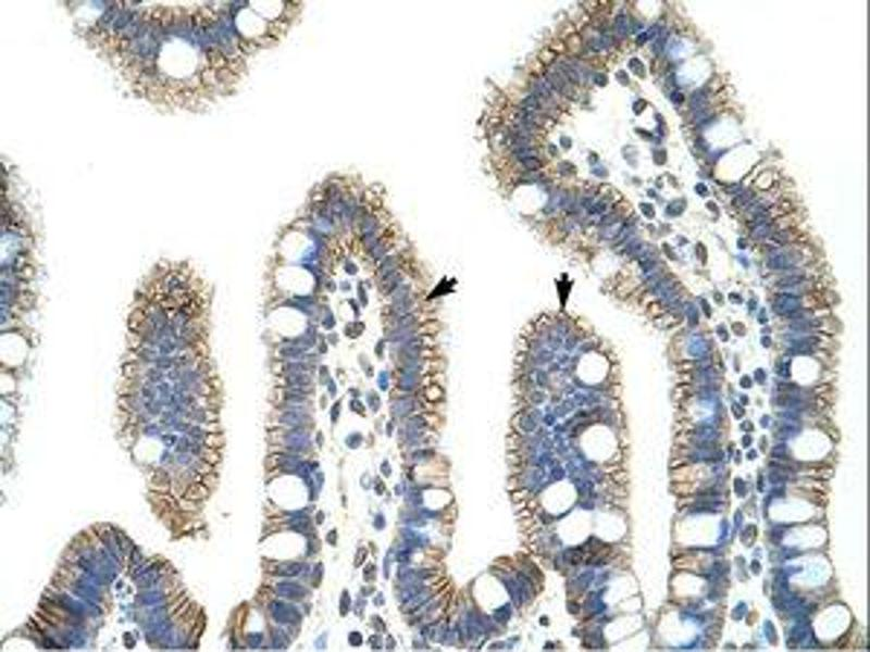 image for anti-CTNNB1 antibody (Catenin (Cadherin-Associated Protein), beta 1, 88kDa) (C-Term) (ABIN202911)