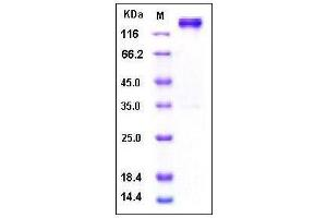 Image no. 1 for Leptin Receptor (LEPR) (AA 1-839), (Extracellular Domain) (Active) protein (Fc Tag,His tag) (ABIN2002563)