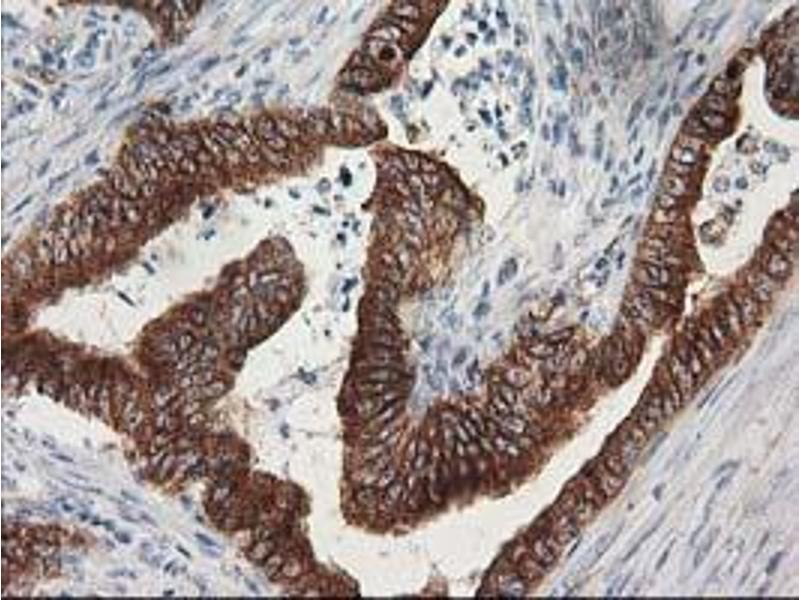 Immunohistochemistry (IHC) image for anti-TUBB5 antibody (Tubulin, Beta, 5) (ABIN2454621)