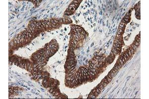 Immunohistochemistry (IHC) image for anti-Tubulin, Beta, 5 (TUBB5) antibody (ABIN2454621)