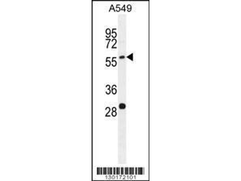 Western Blotting (WB) image for anti-PALM3 antibody (Paralemmin 3) (AA 546-574) (ABIN655704)