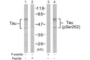 Image no. 2 for anti-Microtubule-Associated Protein tau (MAPT) (pSer262) antibody (ABIN196808)