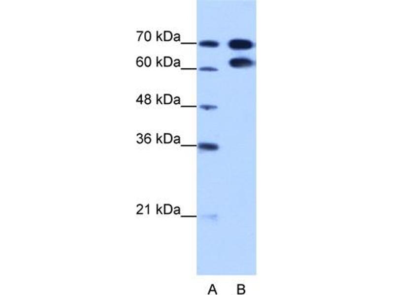 Western Blotting (WB) image for anti-Ribonucleoprotein, PTB-Binding 1 (RAVER1) (N-Term) antibody (ABIN184074)