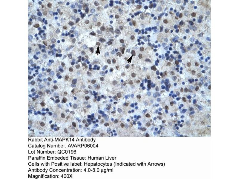 Immunohistochemistry (IHC) image for anti-MAPK14 antibody (Mitogen-Activated Protein Kinase 14) (C-Term) (ABIN2792183)