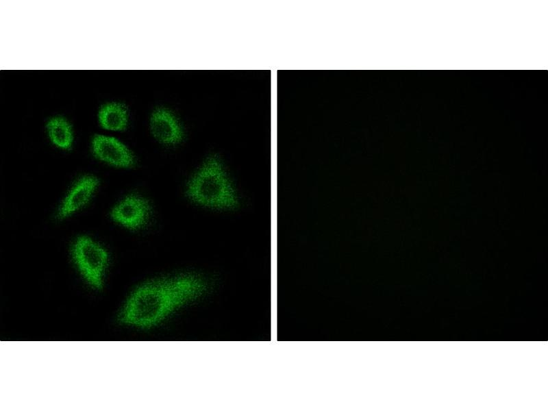 Image no. 2 for anti-Cytochrome P450, Family 2, Subfamily W, Polypeptide 1 (CYP2W1) antibody (ABIN1575969)