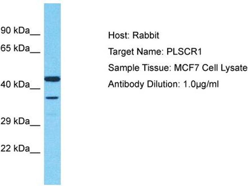 Western Blotting (WB) image for anti-phospholipid Scramblase 1 (PLSCR1) (Middle Region) antibody (ABIN2791860)