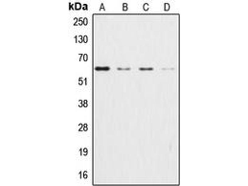 Western Blotting (WB) image for anti-V-Akt Murine Thymoma Viral Oncogene Homolog 1 (AKT1) (Center) antibody (ABIN2705427)